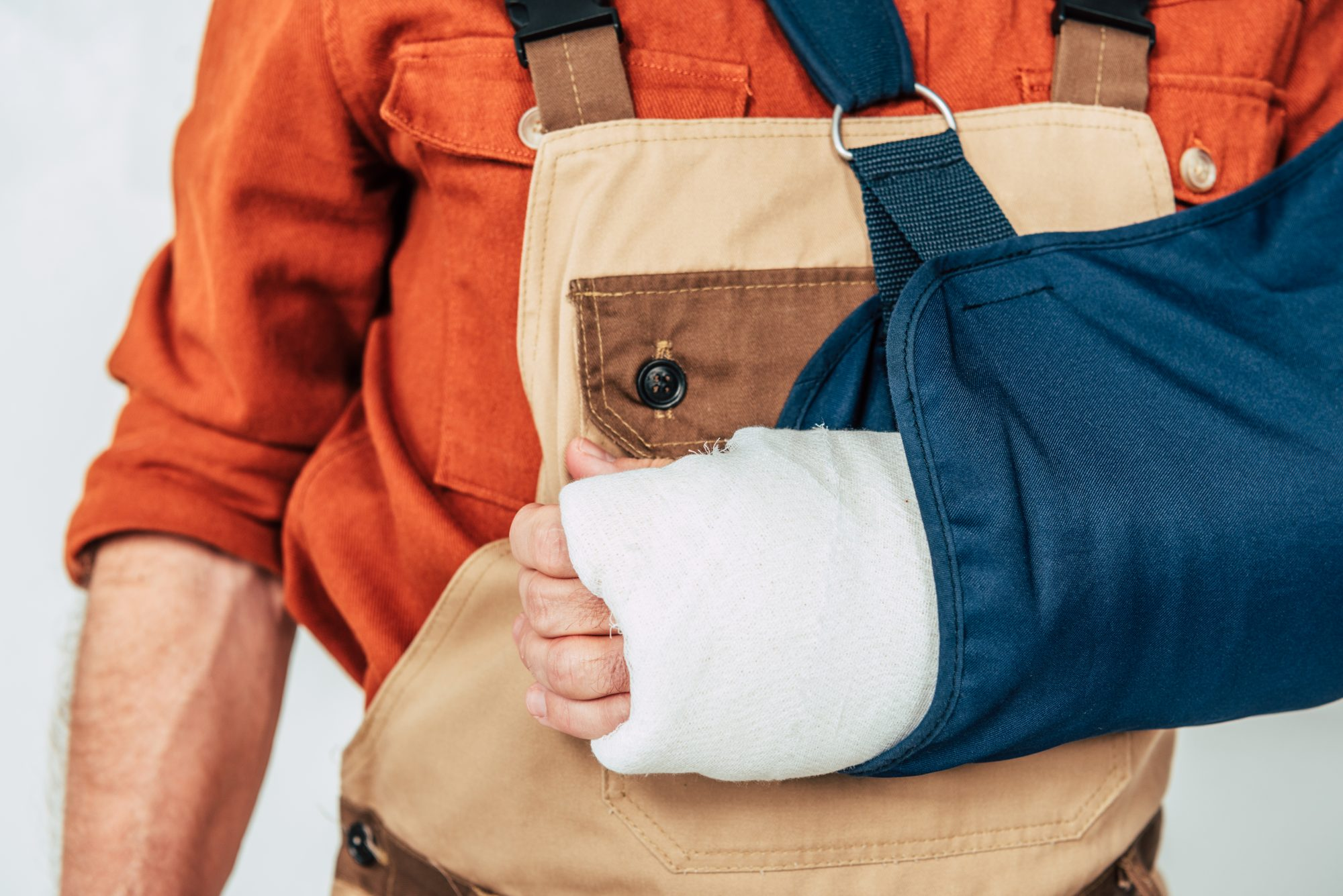 A Livingston Parish man with his arm in a cast after experiencing a personal injury.