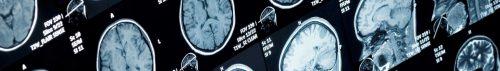 Traumatic brain injury lawyer in Louisiana