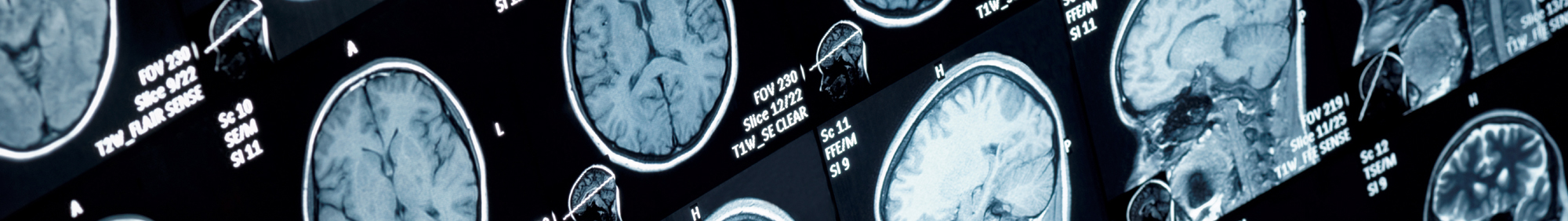 Traumatic brain injury lawyer in Louisiana